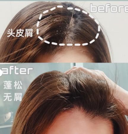 女士去屑洗发水排行榜,最好用的居然是它!